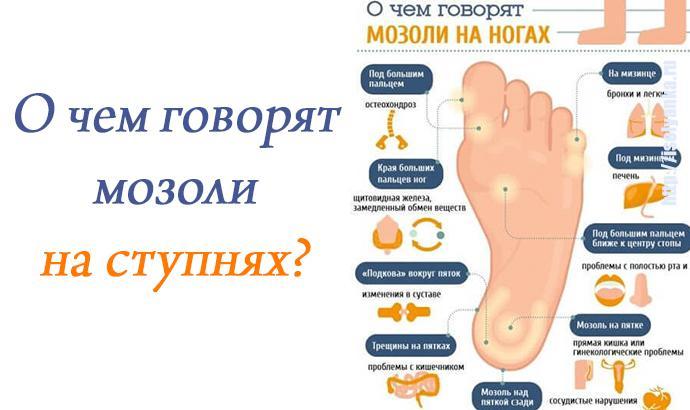 mozol | О чем говорят мозоли на ступнях ног?