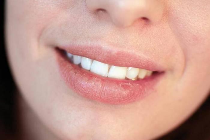 image1-9 | Как не надо красить губы: 5 ошибок, которые совершают почти все женщины