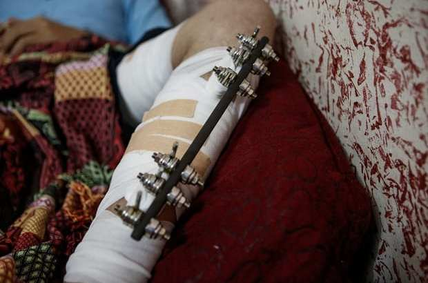 Shattered Limbs, Broken Dreams: Life for Gaza Athletes after Surviving Israeli Bullets