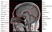 Preguntas para optimizar tus funciones cerebrales