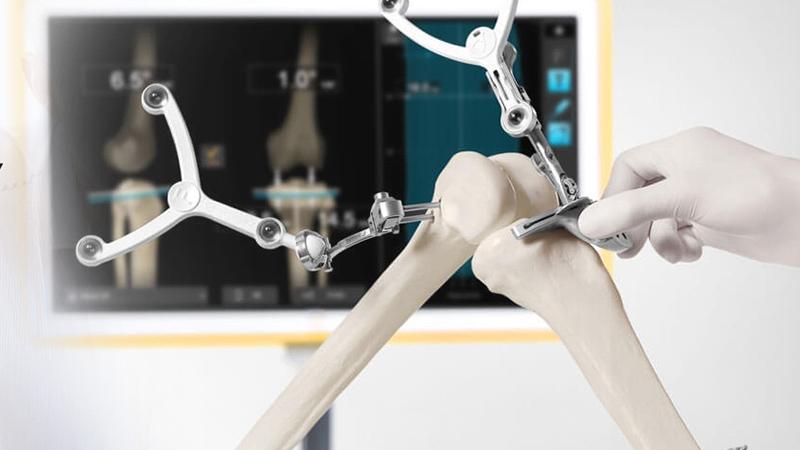 Robotik Navigasyonlu Diz Protezi Ameliyatı Görsel