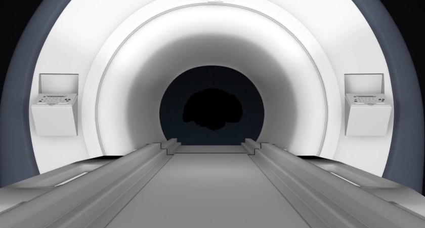 SyntheticMR erhåller ytterligare godkännande från FDA avseende bolagets programvara SyMRI