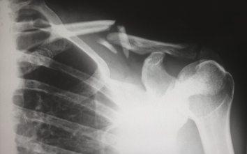 Judoinspirerad träning kan förebygga fallolyckor på jobbet 3