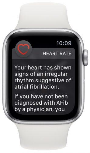 Apple-Watch-Series-4-irregular-Heart-Rate-Notification-296×500