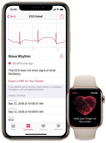 ECG-health-app-irregular-heart-rate-notification-iPhone-Apple-Watch-Series-4-371×500