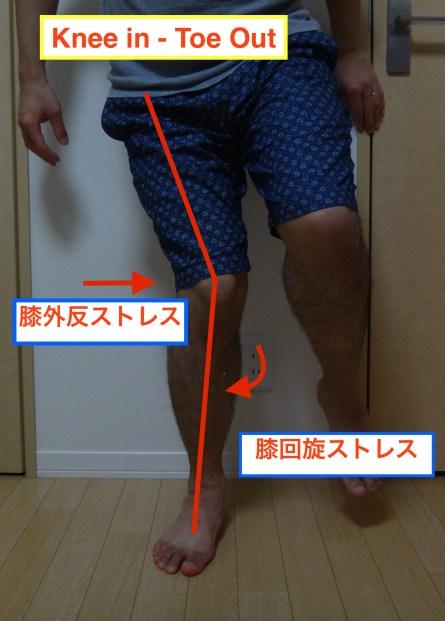 knee in