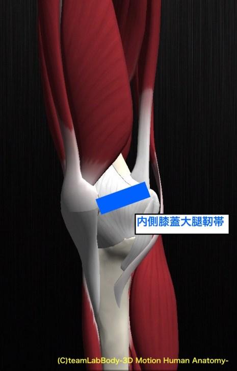 内側膝蓋大腿靭帯 MPFL