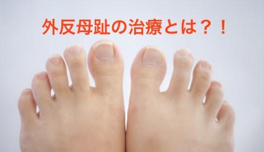外反母趾の原因や痛みの軽減・予防方法、治療や手術とは?簡単にできる母趾外転筋トレーニング、母趾内転筋ストレッチをご紹介!