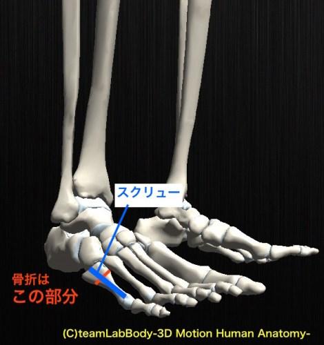 ジョーンズ骨折 手術