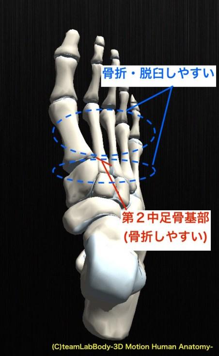 リスフラン関節脱臼骨折