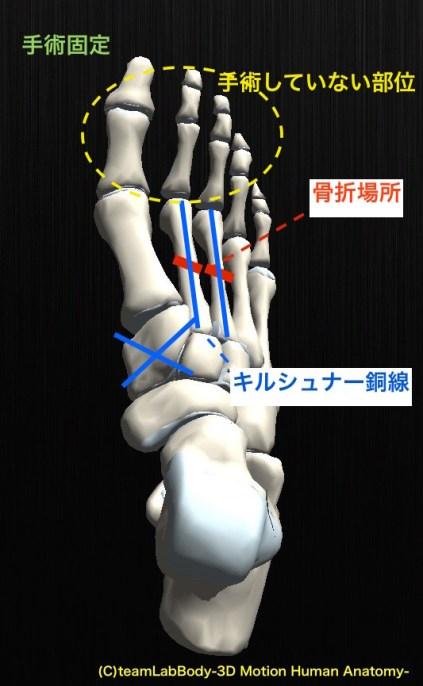 リスフラン関節脱臼骨折 手術