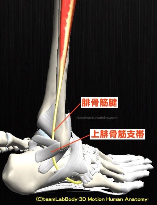 上腓骨筋支帯