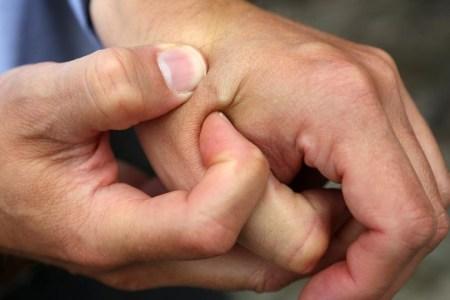 Жителя Сиднея оштрафовали за безбилетный проезд, поскольку он не смог предъявить вшитый в руку проездной