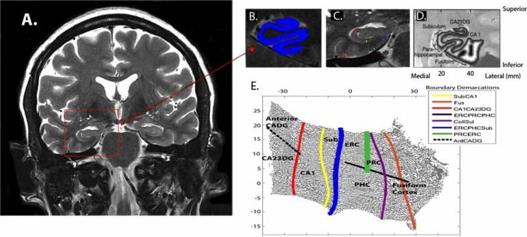 Исследование: Сидячий образ жизни плохо влияет на память