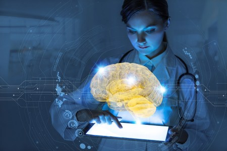 Алгоритм HeadXNet поможет медикам в диагностировании церебральной аневризмы