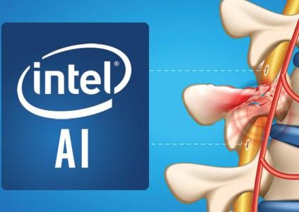 Intel задействует ИИ для восстановления нейронных связей в поврежденном спинном мозге, парализованные пациенты смогут вернуть контроль над телом