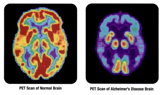 Uses of Isotopes, PET Scan of Normal Brain, PET Scan of Alzheimer's Disease Brain