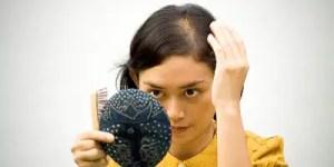 teenage hair loss