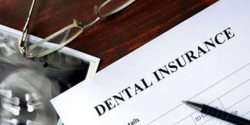 Dental Implant Insurance Cover