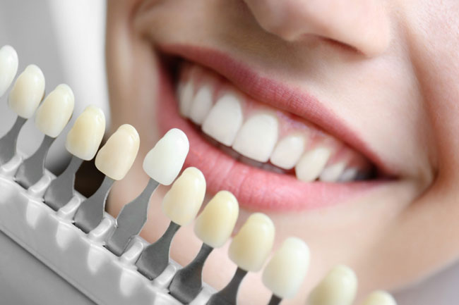 How Much Are Tooth Implant