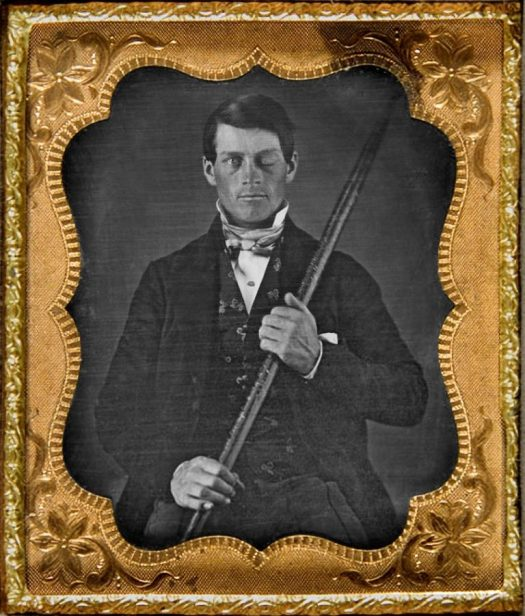 Phineas Gage holding the iron rod that went through his skull