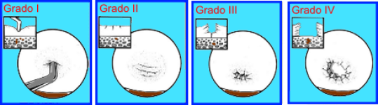lesion-condral