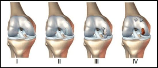 lesion-condral-3