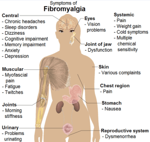 512px-Symptoms_of_fibromyalgia