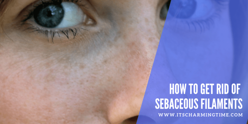 Do You Want To Know How to get rid of sebaceous filaments