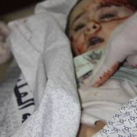 Gaza genocide: Urgent plea from Dr Mads Gilbert (Shifa hospital)