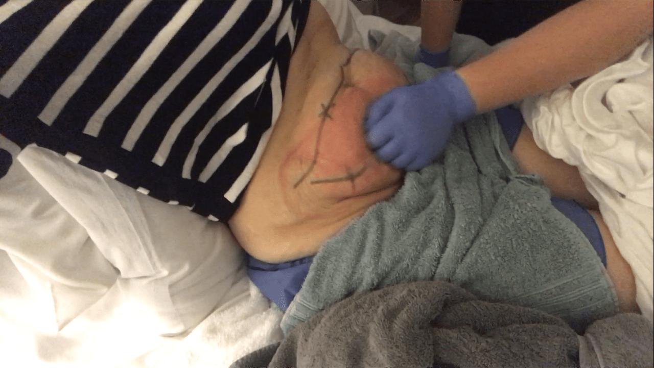CoolSculpting Massage
