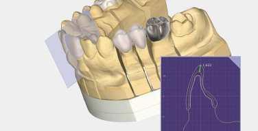 exocad-lanza-PartialCAD-para-diseño-de-estructuras-dentales-parciales