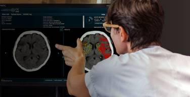 Brainomix-anuncia-el-certificado-CE-para-nuevo-software-e-CTA