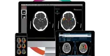Brainomix-y-Olea-Medical-se-unen-para-brindar-e-STROKE-SUITE
