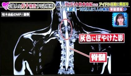 柏木由紀,難病,手術,病名,病気,手根管症候群,主治医が見つかる診療所,AKB48,脊髄腫瘍,脊髄空洞症