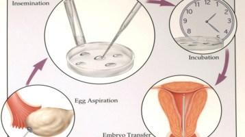 Διέγερση ωοθηκών