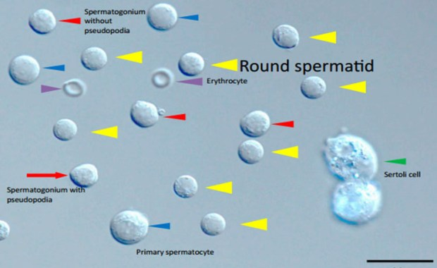 spermatides
