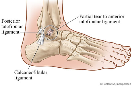 Ankle with a ligament tear