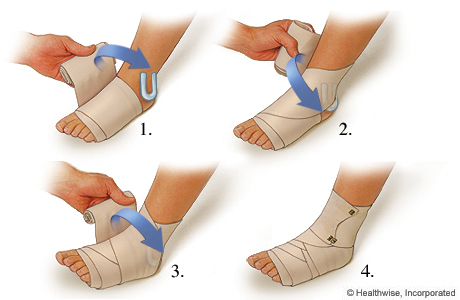 How to apply a compression wrap for a sprained ankle