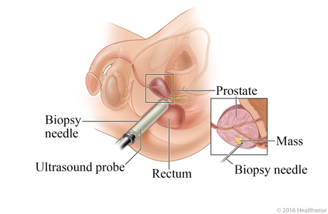 Picture of transrectal prostate biopsy