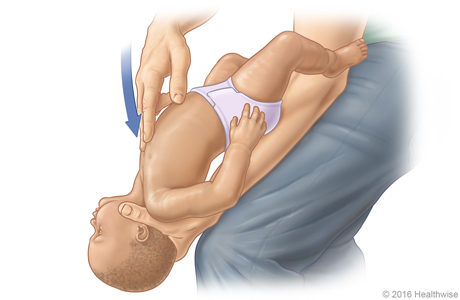 Picture D: Position of baby on thigh for Heimlich maneuver, showing position and direction of chest thrusts
