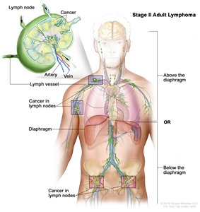 Stage II adult lymphoma; drawing shows cancer in two lymph node groups above the diaphragm and below the diaphragm. An inset shows a lymph node with a lymph vessel, an artery, and a vein. Cancer cells are shown in the lymph node.