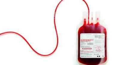 kan fazlalığı nedir