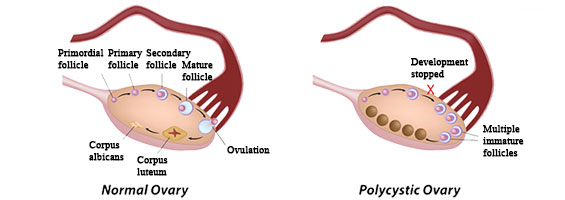 Ovary Side Lower Pain Left