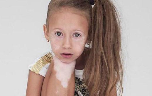 Белые пятна на лице у ребенка или взрослых, причины и фото ...