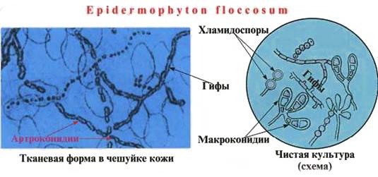 terbinefin varicoză colanți varicose recenzii