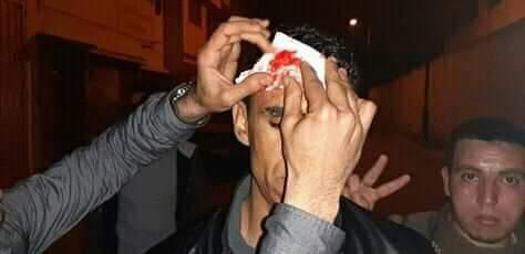 إصابة أب أستاذ متعاقد بجروح بليغةفي تدخل أمني ضد اعتصام للأساتذة بالرباط