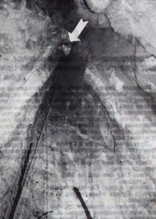 Поглед са дна Шаранове јаме: отвор на врху обележен стрелицом подсећа на рупу у кључаоници – тако то изгледа са дубине од 42.5 метра (снимио Жељко Јовановић)