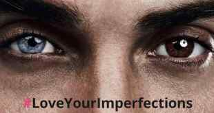 Meetic affiche nos imperfections !