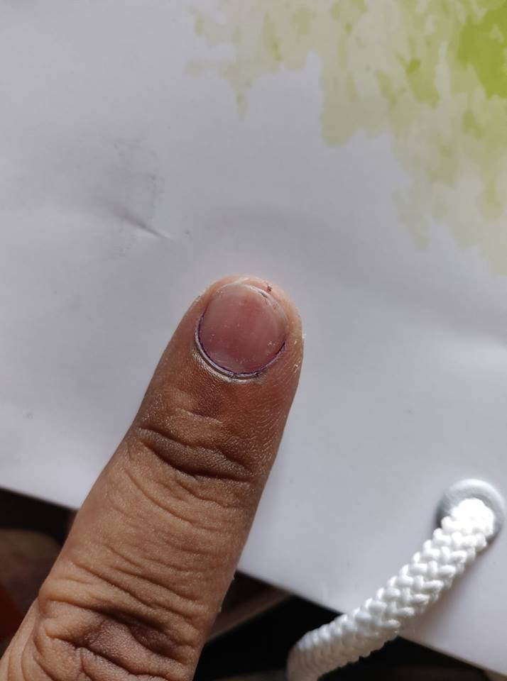 Right to Unlimited Votes? Ink on Fingers Disappears Post Normal Wash in Pune